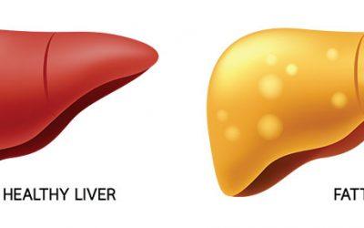 Best Diet for Fatty Liver & Diabetes