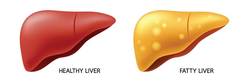 Best Diet for Fatty Liver & Diabetes